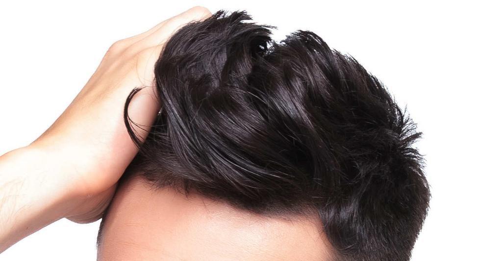 ... caduta dei capelli. alopecia-da-stress-sintomi-e-cause af032439e67a