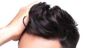 alopecia-da-stress-sintomi-e-cause