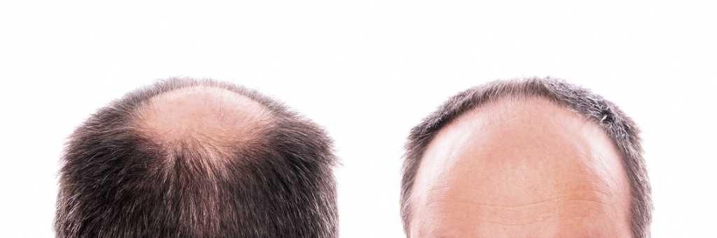 alopecia-androgenetica-rimedi-naturali