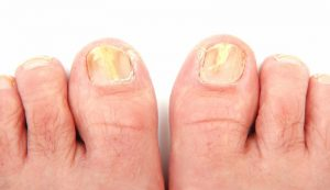 micosi alle unghie di mani e piedi