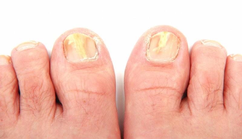 La stratificazione e fragilità di trattamento di unghie