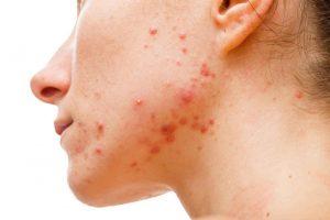 rimedi per l'acne tardiva